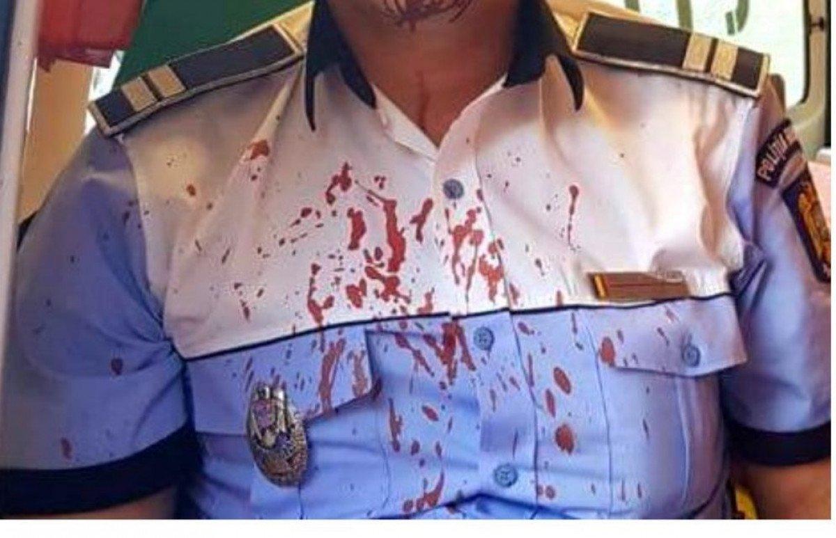 Fara declaratie, un barbat a batut o patrula de politie. declaratie pe propria raspundere
